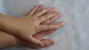 acromegalia tratamiento en guadalajara